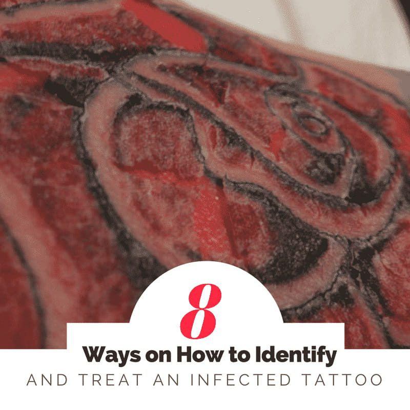 8 how to identify and treat an infected tattoo (1)
