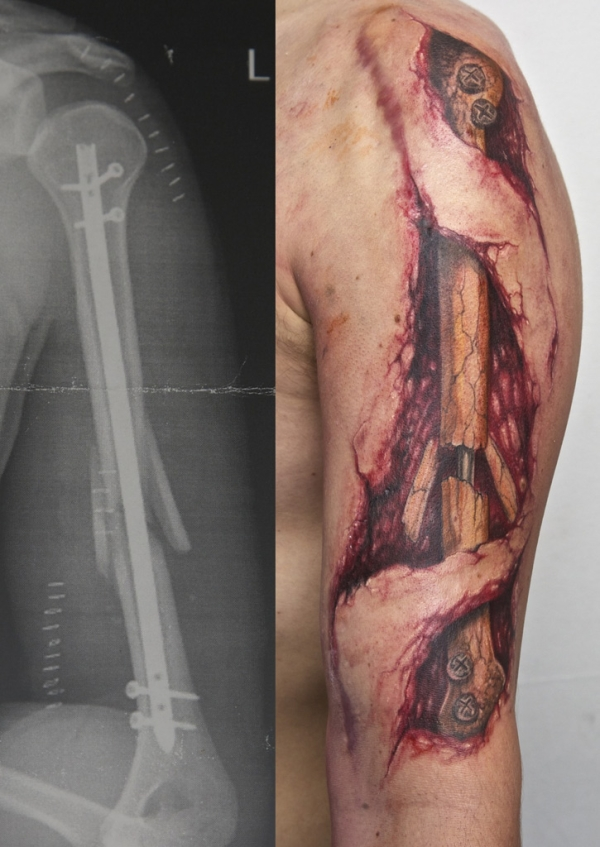 Broken Arm Tattoo