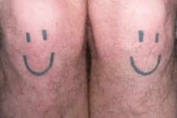 Smiley Face on the Knee