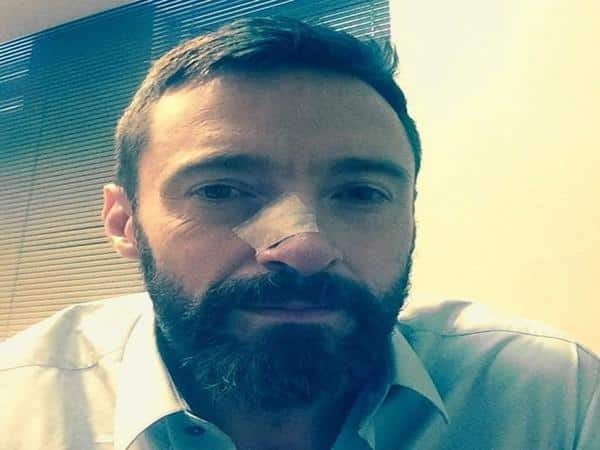 Hugh Jackman Shaved Head with Tuft of Bangs